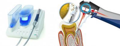 Современные ультразвуковые технологии в лечении заболеваний пародонта в Феодосии