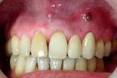 Причины возникновения кисты зуба