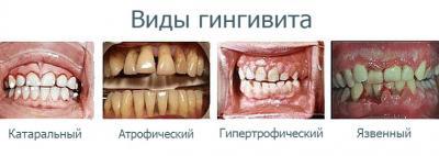 Лечение гингивита разных видов