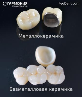 Разница безметалловой коронки и металлокермической