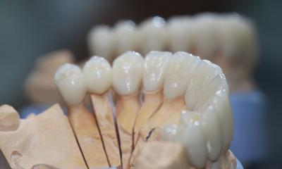 Отличный результат при протезировании Циркониевыми коронками