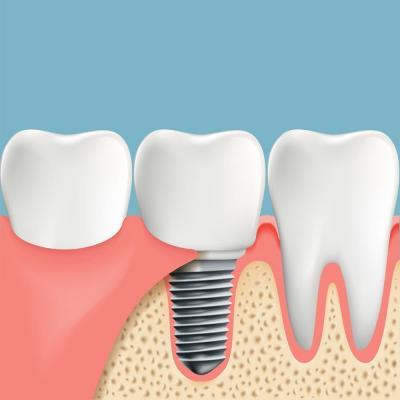 Восстановление зубов без обточки соседних