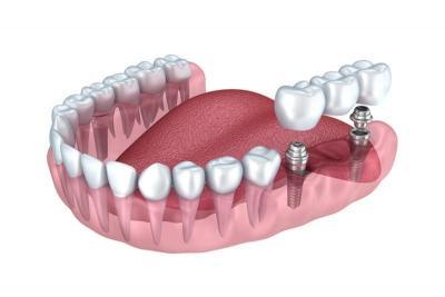 Этапы имплантации зуба в Феодосии