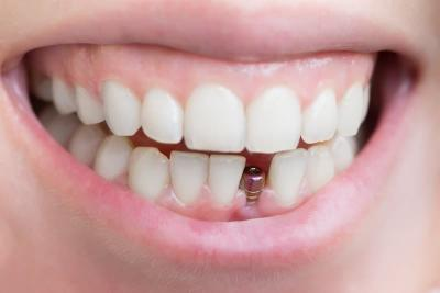 Имплантация зубов в Феодосии