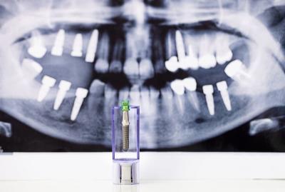 Панорамный снимок перед имплантацией зуба в Феодосии