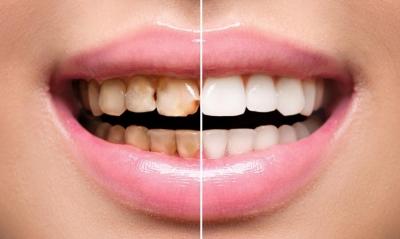 Реставрация зубов в Феодосии в Крыму