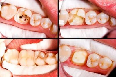 Этапы реставрации зубов в Феодосии в Крыму