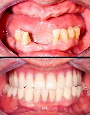 Какие виды зубных протезов можно установить в Феодосии