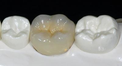 Несъемное протезирование зубов в Феодосии в Крыму