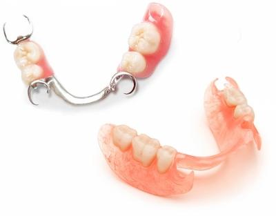 Установка зубного протеза без неба в Феодосии в Крыму