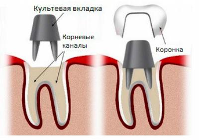 культевая вкладка под коронку в Феодосии в Крыму