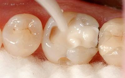 Композитная реставрация зубов в Феодосии в Крыму