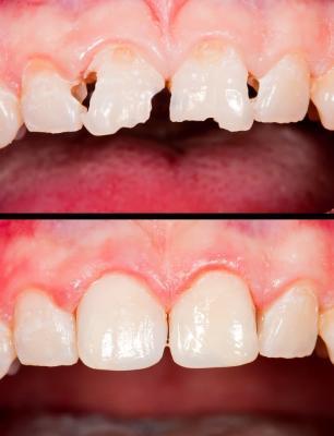 Реставрация зубов композитными материалами в Феодосии