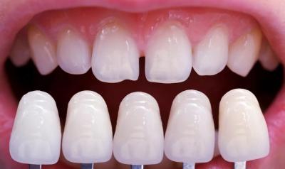 Исправление дефектов зубов в Феодосии в Крыму