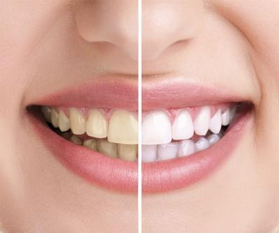 Как продлить эффект отбеливания зубов