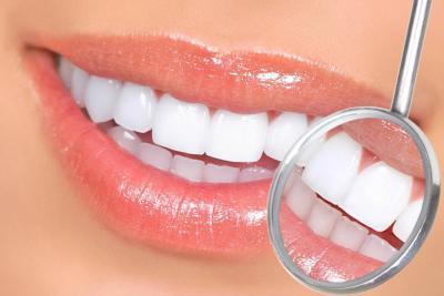 Отбеливание зубов в Крыму