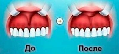 Пластика уздечки верхней губы в Крыму в Феодосии