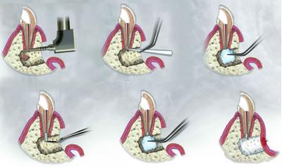 резекция верхушки зубного корня в Феодосии