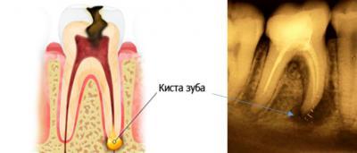 Патология в районе верхушки зубного корня