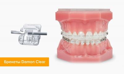 Сапфировые брекеты на зубах смотрятся очень эстетично