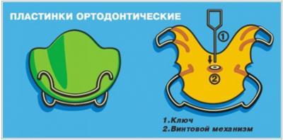 Ортодонтическая пластинка для исправления прикуса в Феодосии