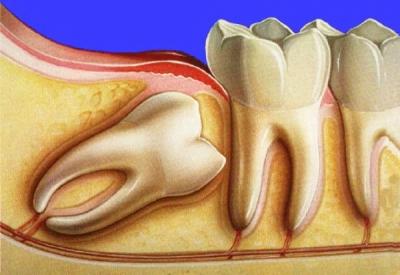 Удаление ретинированных зубов в Крыму