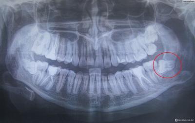 Подготовка к удалению ретинированных зубов